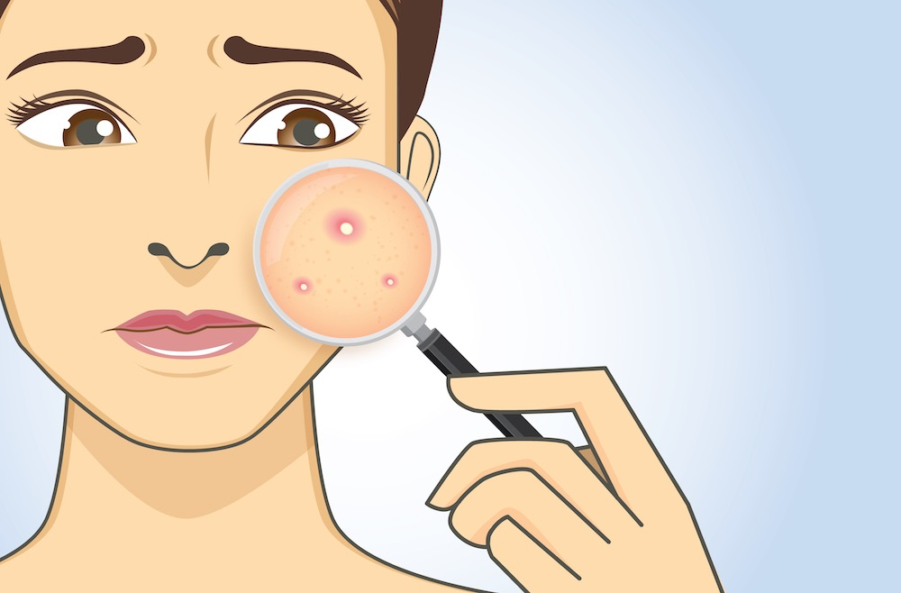 A magnifier on hand magnifying the woman facial to finding acne