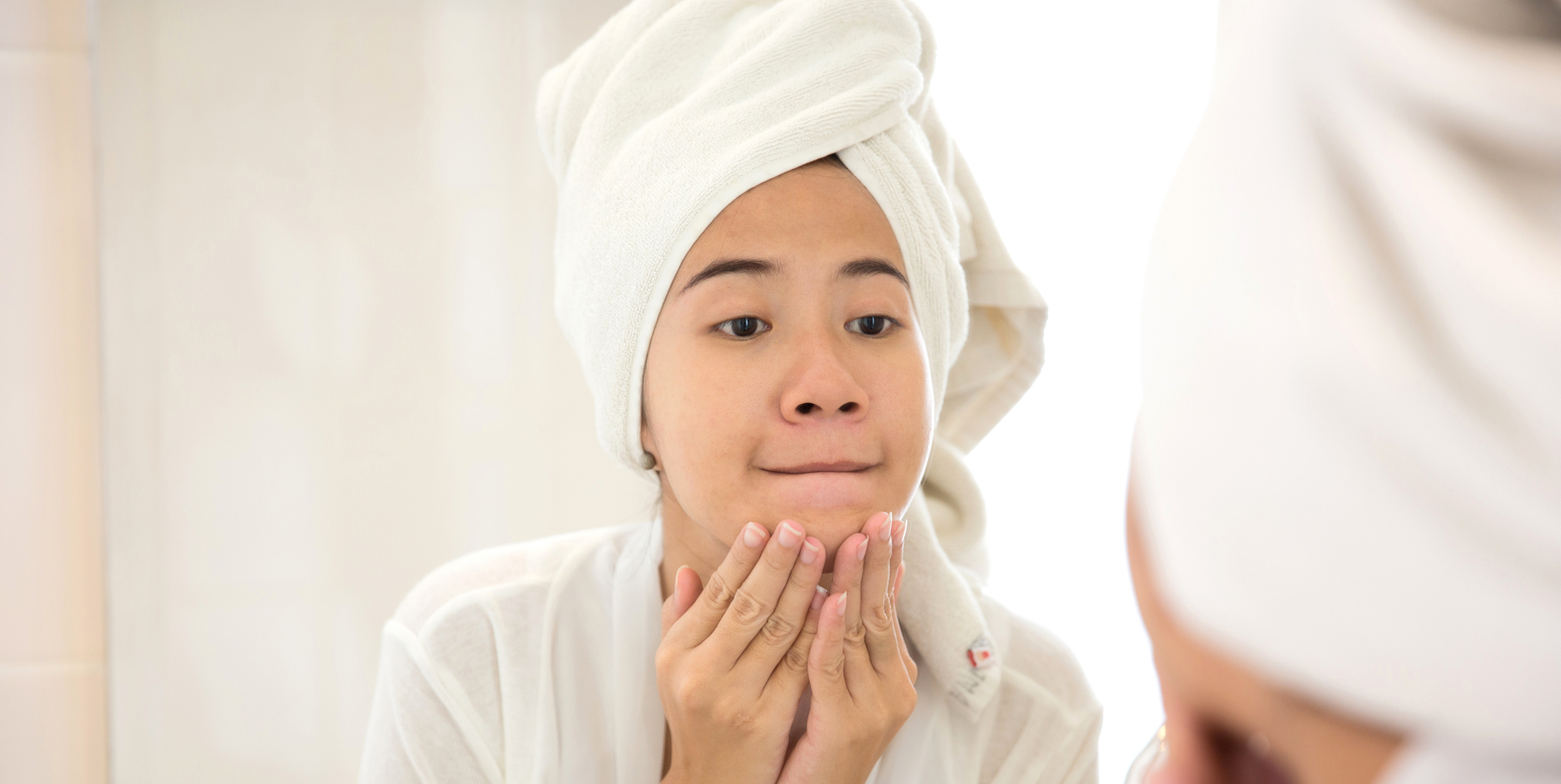Hormonal Acne Causes Types And Treatment