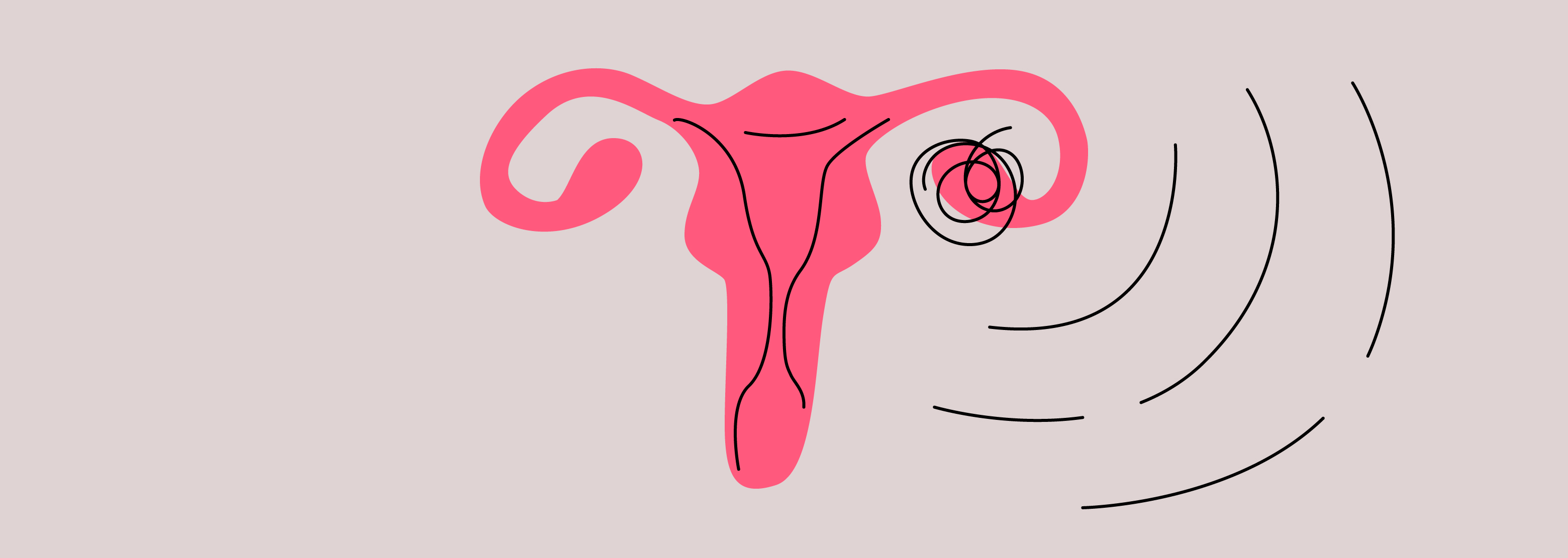 Ovary Pain During Pregnancy: What Does It Mean?