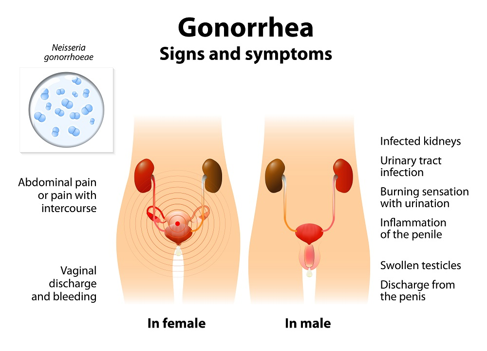 Gonorrhea signs and symptoms