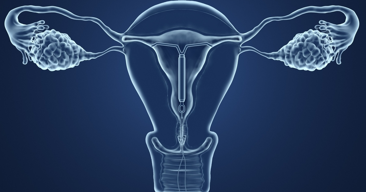 16 Things You Should Know If Youre Considering An IUD