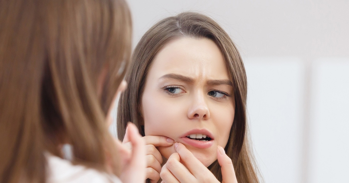 How To Get Rid Of Acne 4 Steps For Complete Knowledge And Treatment