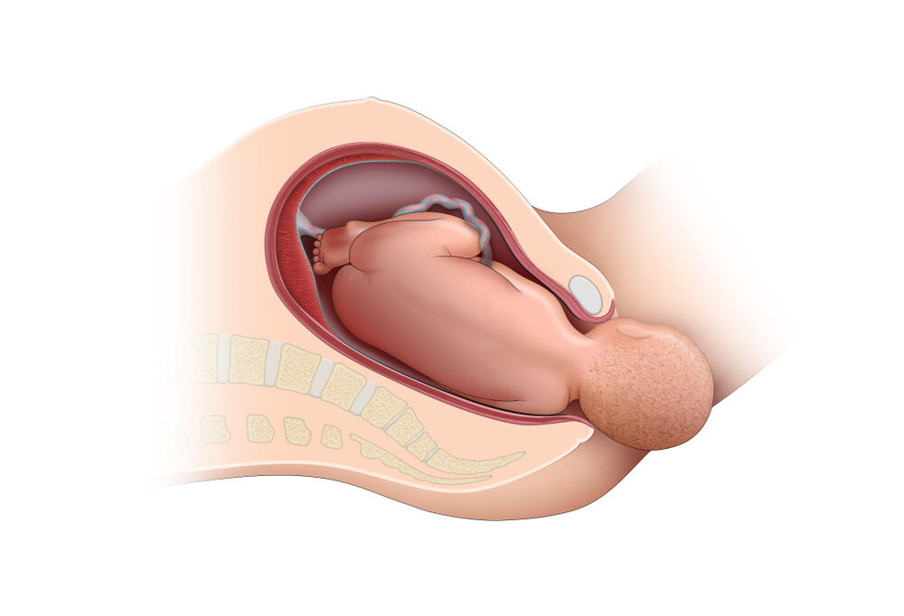 Loose anus after pregnancy