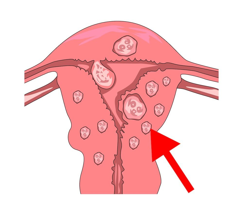 Myoma (Fibroid) — Causes, Symptoms, Treatment