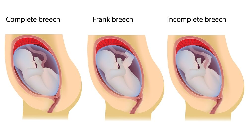 What Is a Breech Birth? Types, Causes, and Giving Birth