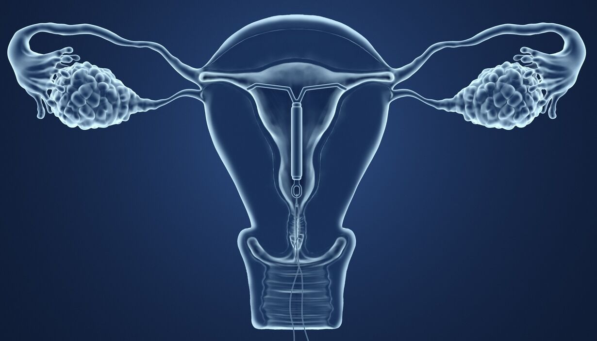 IUD After Giving Birth: Timing, Effectiveness, Side-Effects