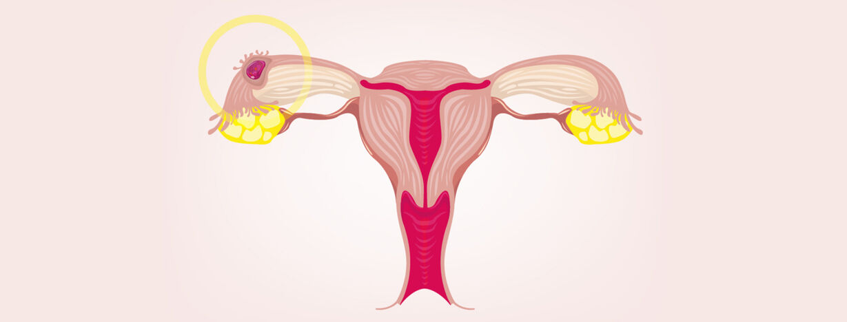 6 Ectopic pregnancy symptoms – consult a doctor if you have