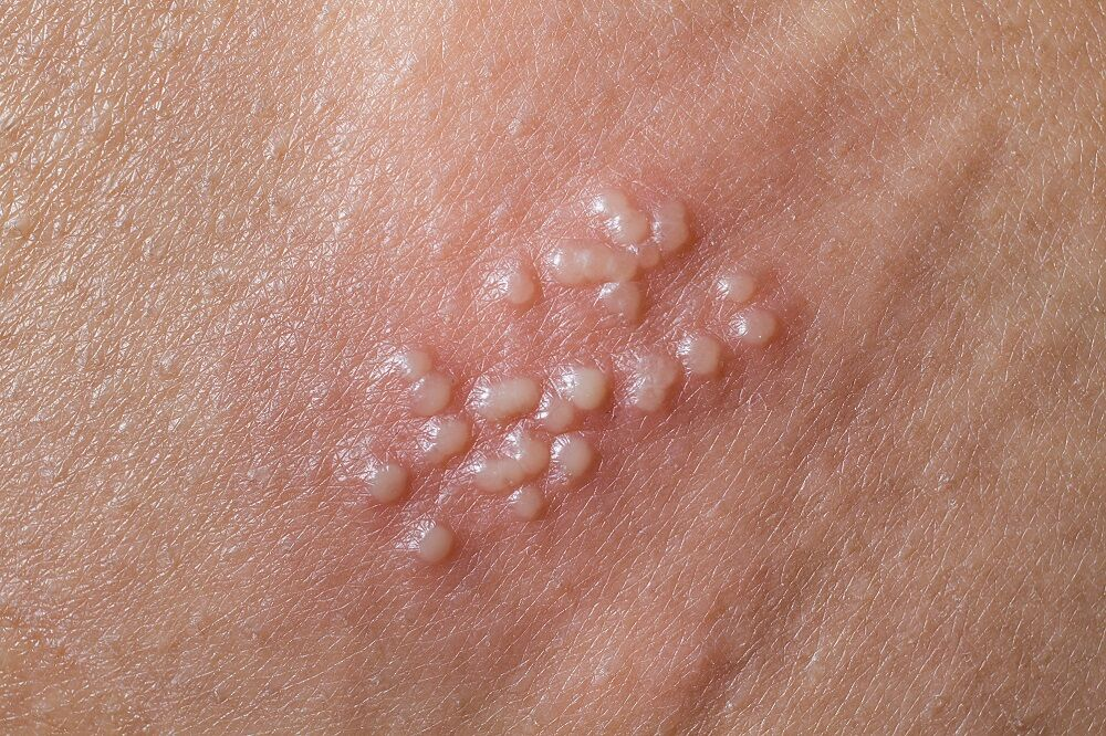 Anal herpes symptoms pictures