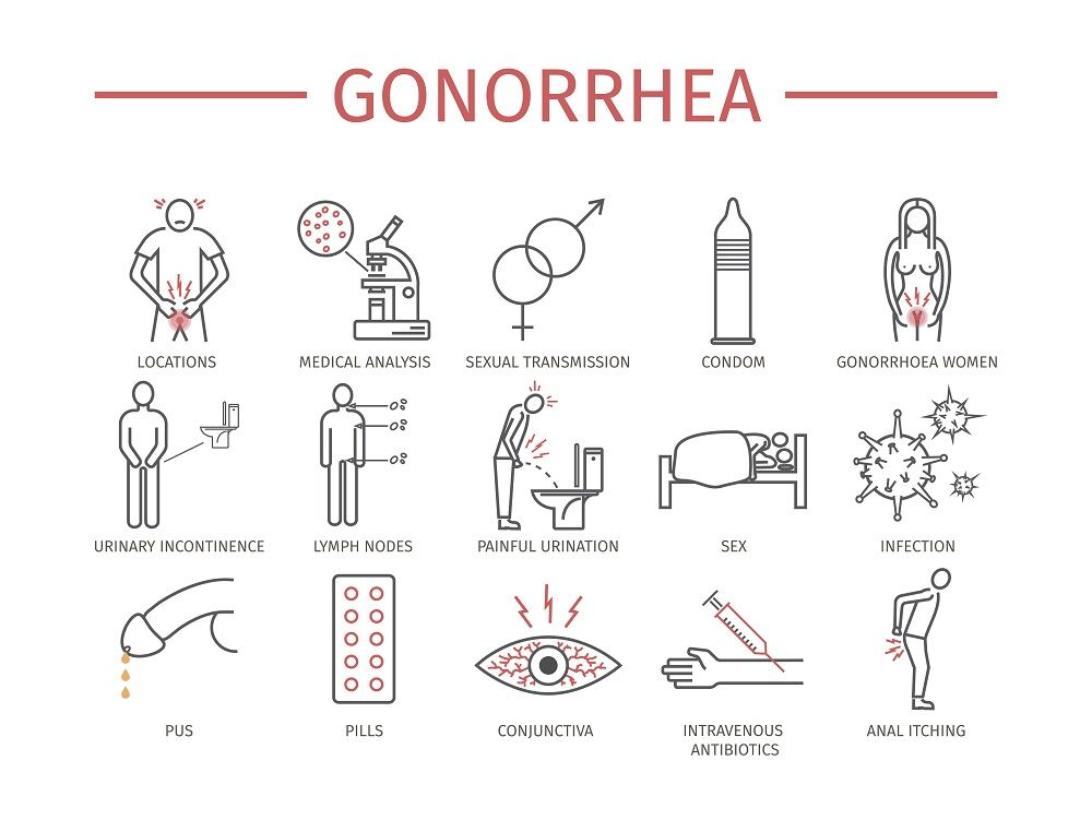Signs and transmission of gonorrhea